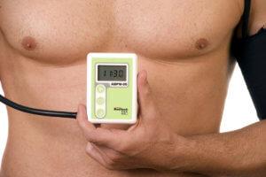 СМАД – суточное мониторирование артериального давления
