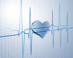 ЭКГ – графическое отображение электрических потенциалов, которые возникают во время сокращения сердца