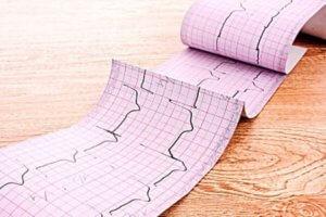 Как выглядит ЭКГ при инфаркте миокарда