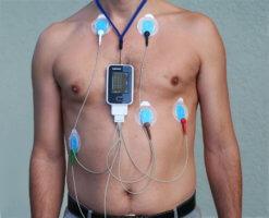 ЭКГ по Холтеру – неинвазивный, эффективный и безопасный метод диагностики состояния сердца