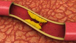 Высокий уровень общего холестерина в крови – угроза для жизни!