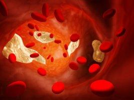 Холестерин – важное вещество в организме человека
