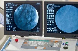 Обследование помогает найти причину и поставить плавильный диагноз