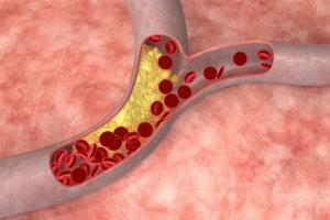 Холестерин в крови – что это такое за вещество?