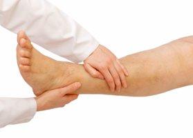 Отечность ног может указывать на серьезный недуг