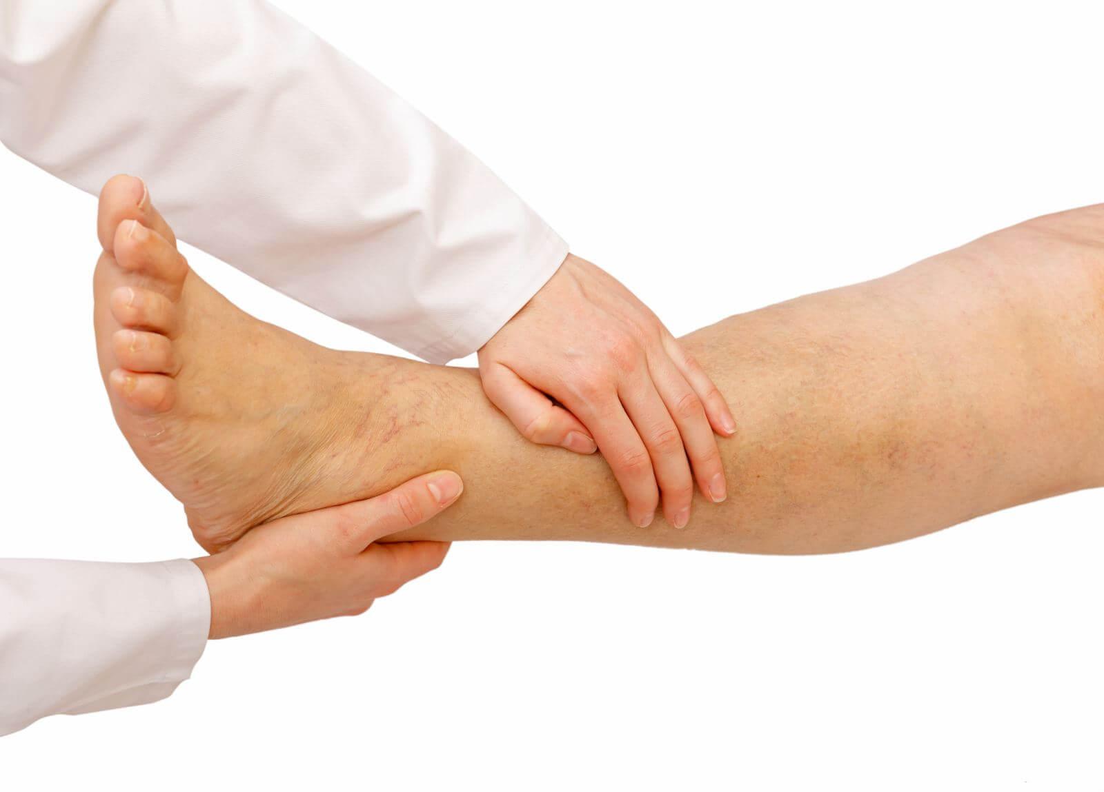 Отечность ног: медикаментозное и народное лечение