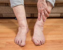 Отеки ног могут указывать на патологию сердца или почек