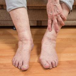 Отек ног у пожилых людей: причины, диагностика, лечение