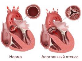 Симптомы стеноза заметны только при сужении устья аорты до 50%