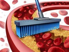 Что растворяет холестериновые бляшки в сосудах: лекарства, рецепты, питание