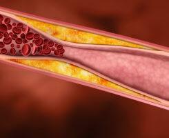 Есть общий, плохой и хороший тип холестерина