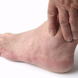 Отекают ноги у мужчин: почему и что делать?