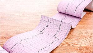 ЭКГ позволяет получить много информации о состоянии сердца