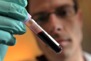 Анализ крови проводится для изучения показателей свертываемости крови
