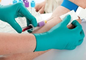 Процедура забора крови на уровень холестерина