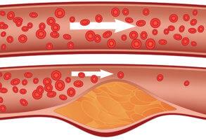 Холестериновые бляшки приводят к затруднению тока крови