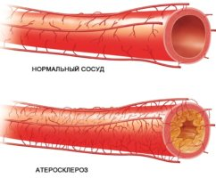 Повышение уровня холестерина повышает риск развития атеросклероза