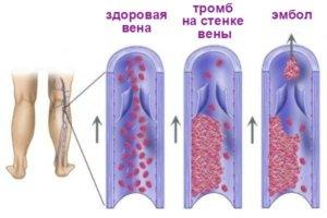 Обследование позволяет увидеть тромбы и определить их местоположение