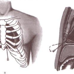 Правильная техника лечебной и диагностической пункции перикарда