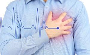 Приступ стенокардии обычно длится не более 15 минут