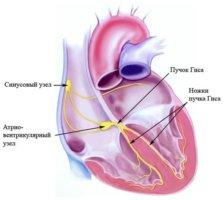 Патология проявляется в том, что желудочки и предсердие сокращаются отдельно