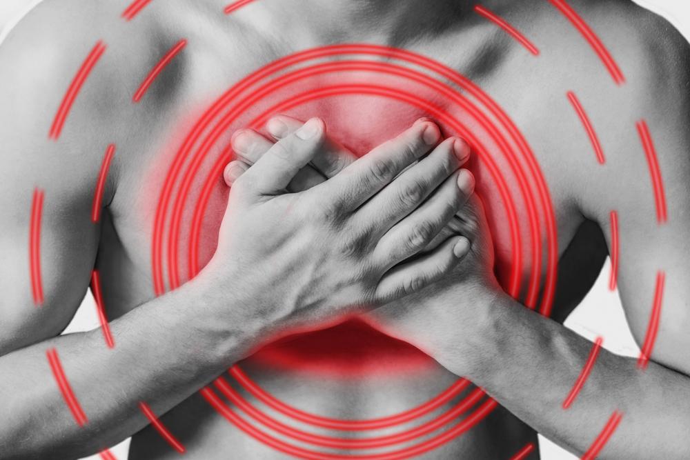 Стенокардия напряжения: симптомы, что надо делать и что нельзя делать