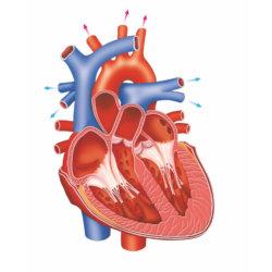 Правожелудочковая сердечная недостаточность: признаки, лечение, прогноз