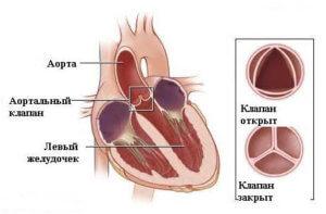 Патология возникает при повреждении клапана аорты