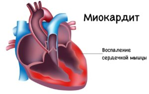 Симптомы заболевания зависят от формы и локализации воспалительного процесса