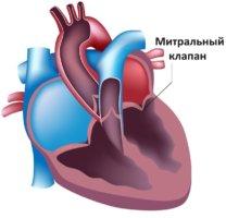 Митральная регургитация может проявляться в острой и хронической форме