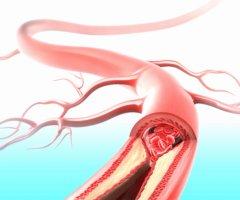 Коронарная ангиография – эффективный метод обследования состояния сосудов сердца