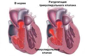 Трикуспидальная регургитация – одна из разновидностей порока сердца