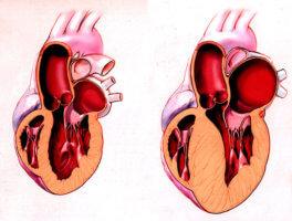 Патология характеризуется гипертрофией желудочков при уменьшенном или нормальном объеме их полостей
