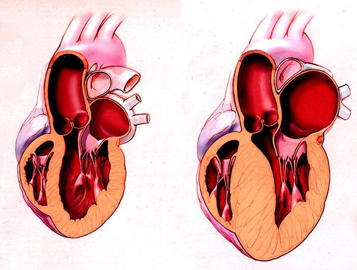 Что это такое гипертрофическая кардиомиопатия: все о патологии