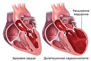 Дилатация сердца приводит к систолической и диастолической дисфункции желудочков