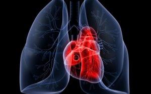 Легочное сердце может иметь острую и хроническую форму
