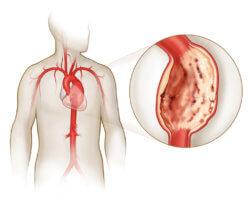 Аневризма проявляется в выпячивании стенки сердца в месте наибольшего истощения