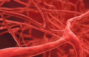Васкулиты – это группа заболеваний, характеризующихся воспалением и разрушением стенок кровеносных сосудов