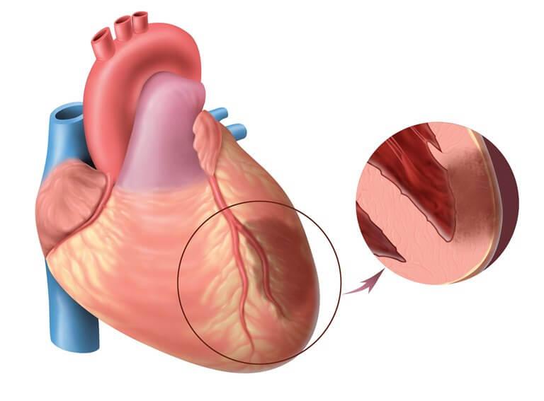 Стадии инфаркта миокарда по времени, их признаки и опасность