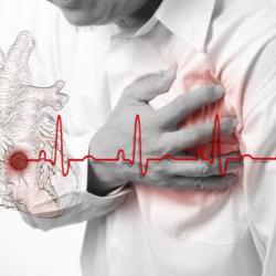 Фибрилляция желудочков сердца: признаки, неотложная помощь и осложнения