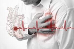 Фибрилляция желудочков сердца – тяжелая и опасная форма аритмии
