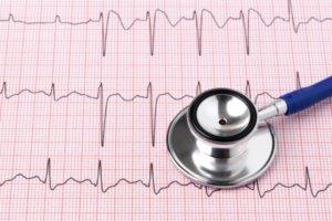 На ЭКГ при аневризме регистрируются признаки трансмурального инфаркта миокарда