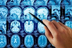 Прогноз зависит от локализации объема поражения головного мозга