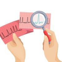 ЭКГ позволяет подтвердить диагноз!