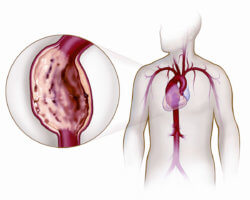 Аневризма аорты – это патологическое расширение участка магистральной артерии