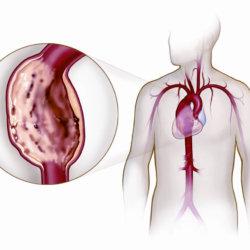 Диагностика и классификация аневризмы аорты