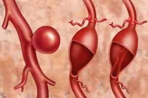 Различают острую, подострую и хроническую аневризму сердца