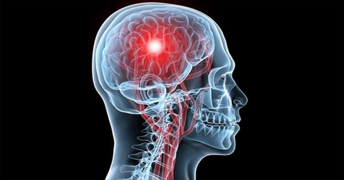 Симптомы, профилактика и реабилитация при инсульте головного мозга