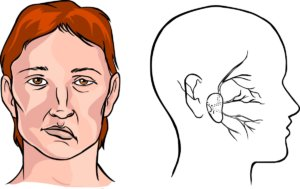 Для патологии типично внезапное появление неврологических симптомов