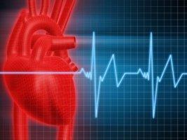 Выделяют фибрилляцию желудочков сердца и предсердий